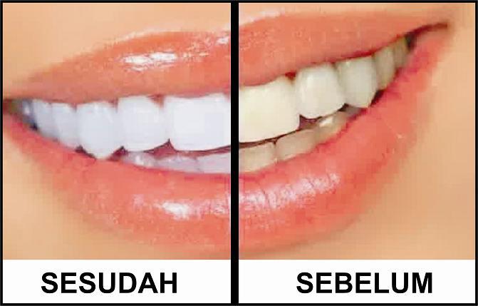 Tips Cara Ampuh Untuk Memutihkan Gigi Menggunakan Bahan Alami Dan