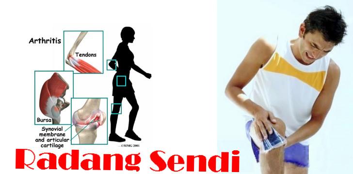 Mengurangi Radag Sendi